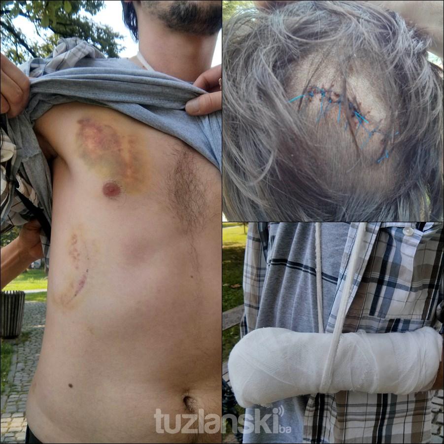 tuzla-nasilje-povrede