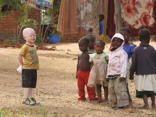 albino-ljudi-malawi-afrika2
