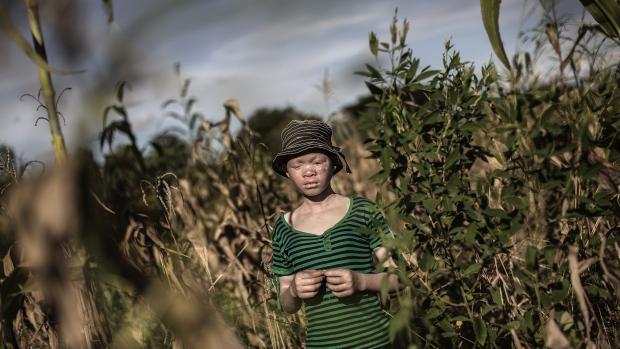 albino-ljudi-malawi-afrika3