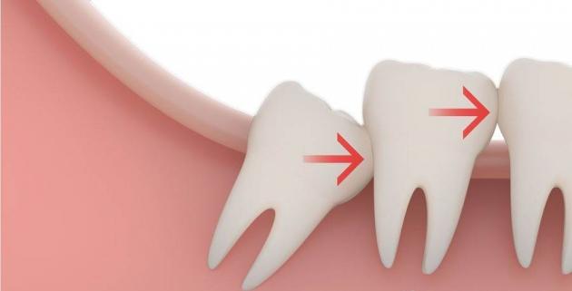 umnjak-zubi-zub