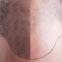 Istraživanje: Što duža radna sedmica, to je veći rizik da ćete ostati bez kose