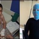 Meho Beton se nakon ukupno 15 operacija vraća kući