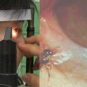 Doktori izvadili četiri žive pčele iz oka žene sa Tajvana